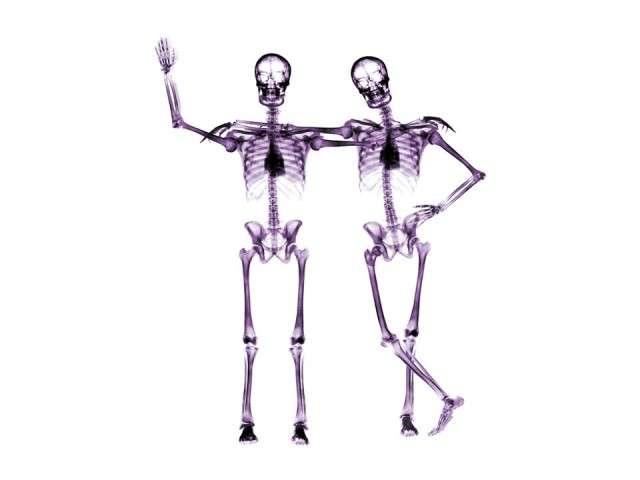 X-Ray xr10.jpg
